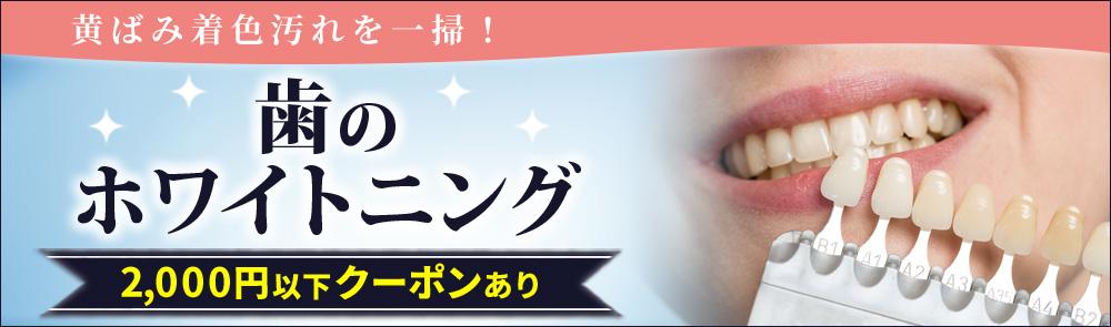 1回1,000円台から☆ 気になる歯の黄ばみ、徹底ホワイトニング
